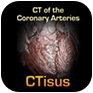 CTisus: CT of the Coronary Arteries