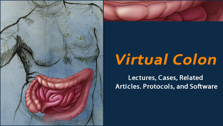 "This section of CTisus was designed to provide informational resources for physicians and technologists interested in virtual colonoscopy. <br /><br /><a href=""/learning/features/virt-colon"">Go to Virtual Colon</a>"