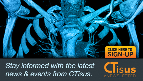 Stay informed about CTisus news and upcoming events. Sign up for the CTisus eNewsletter and get updates sent to your inbox.