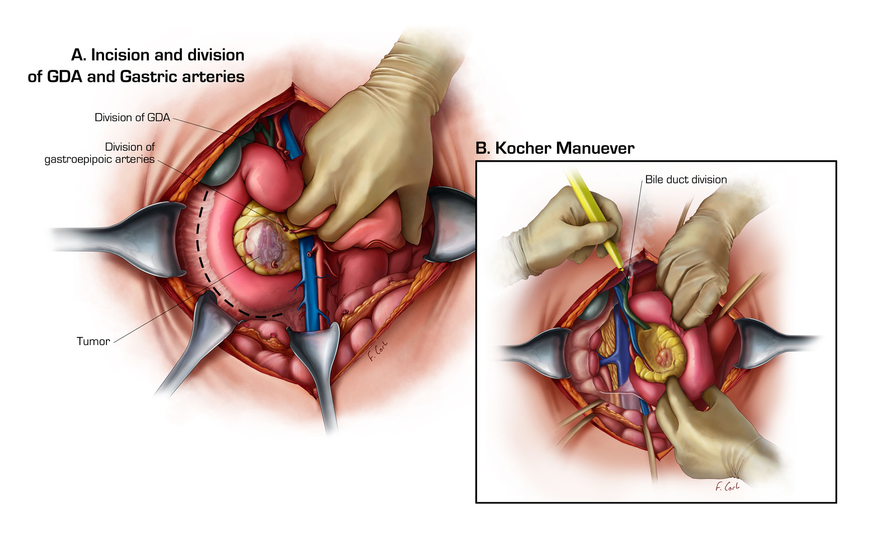 Medical Illustration Gallery - Learning Modules | CT Scanning | CT ...