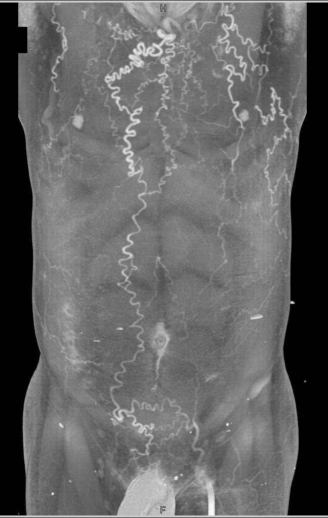 Innominate Vein and IVC Occlusion with Collaterals