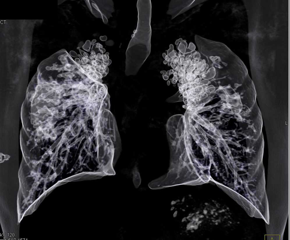 Bronchiectasis with Cystic Fibrosis - CTisus CT Scanning