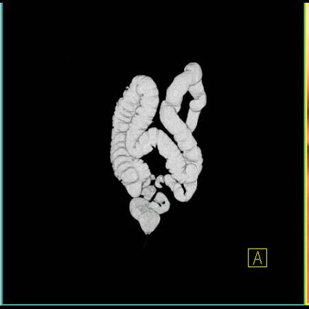 virtual colon: Tortuous sigmoid with sharp angulations related to adhesions from prior surgery. - CTisus CT Scan