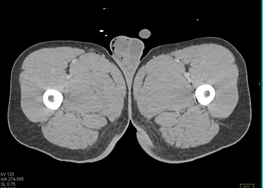 Scrotal Trauma with Injured Right Testis - CTisus CT Scanning