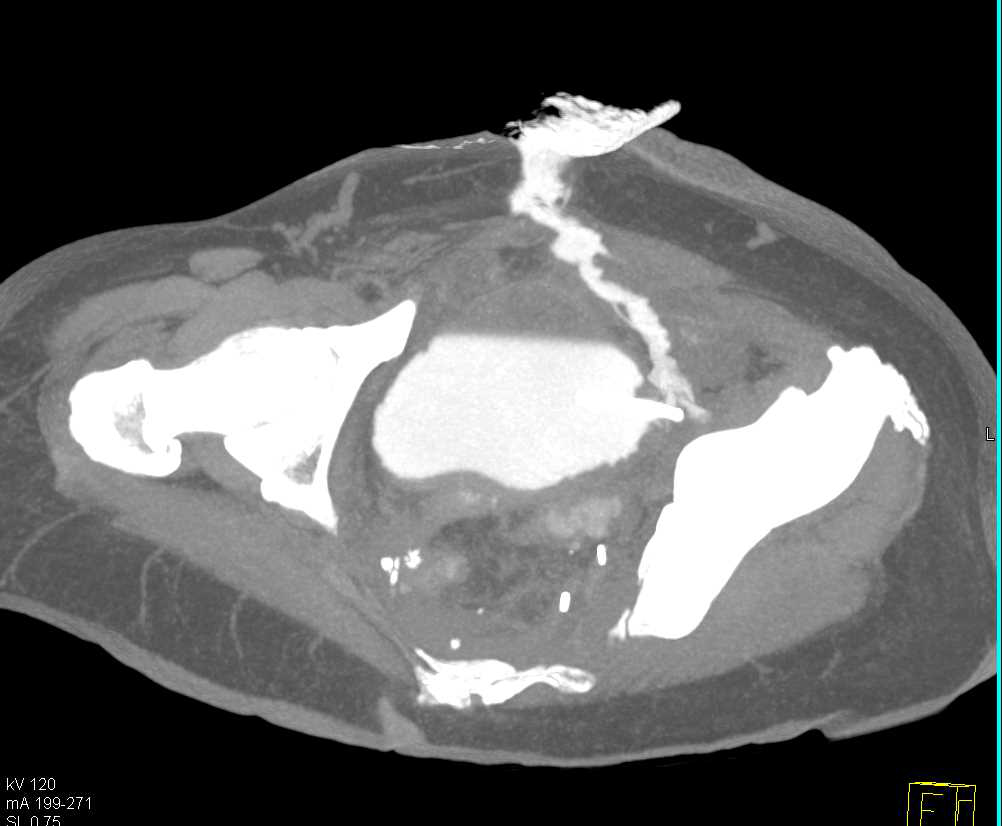 Fistulae from Bladder Thru Abdominal Wall - CTisus CT Scanning