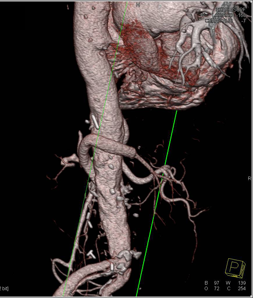 3D Map of a Reimplanted Left Renal Artery