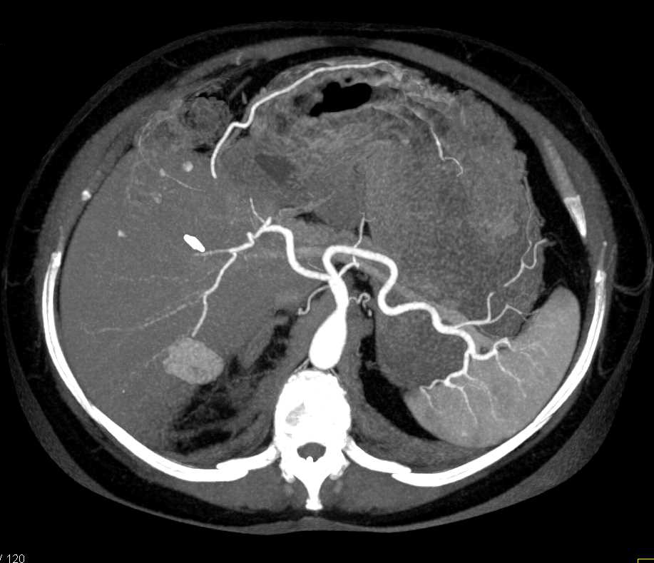 Hepatic Infarction Post Liver Transplant - CTisus CT Scanning