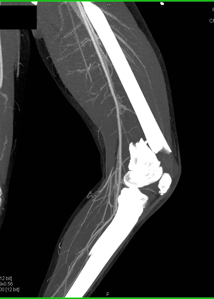 Comminuted Distal Femur Fracture Without Vascular Injury on CTA - CTisus CT Scan