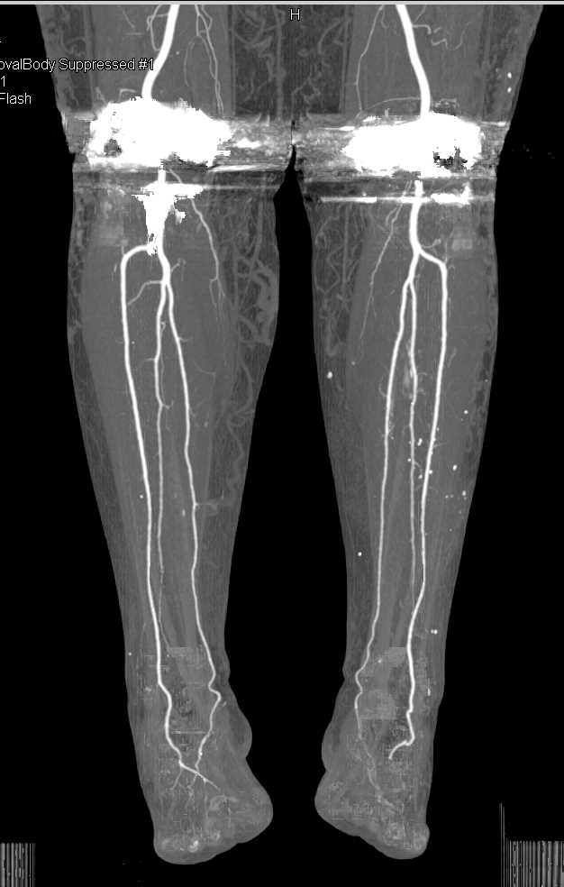 CTA Runoff in a Patient with Bilateral Total Knee Replacements