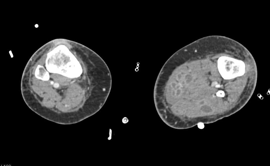 Multiple Bilateral Intramuscular Abscesses - CTisus CT Scanning