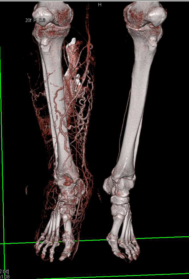 Lymphedema Right Calf and Foot - CTisus CT Scanning
