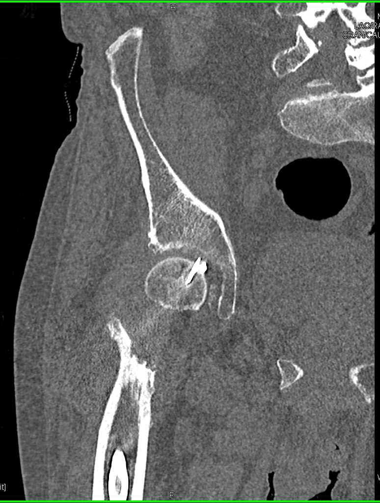 Pins Extend Thru Right Femur - CTisus CT Scanning