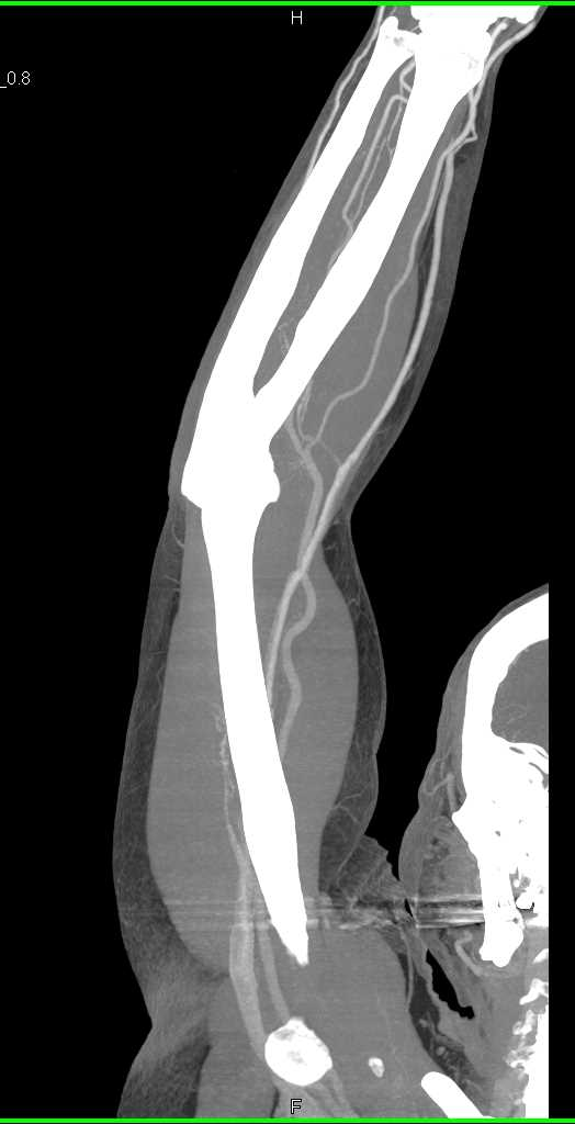CTisus CT Scanning | CTA Upper Extremity with Bone Removal to See Vascular Map