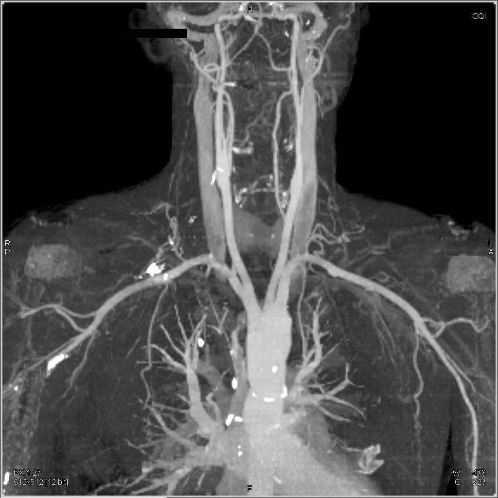 Normal Cta Of The Neck - Neuro Case Studies