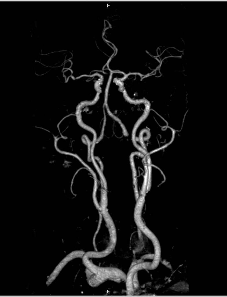 CTA Carotid Arteries with Minimal Plaque