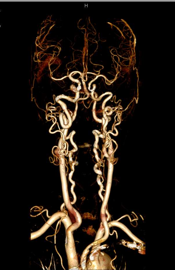 CTA of Carotid Arteries and COW - CTisus CT Scanning