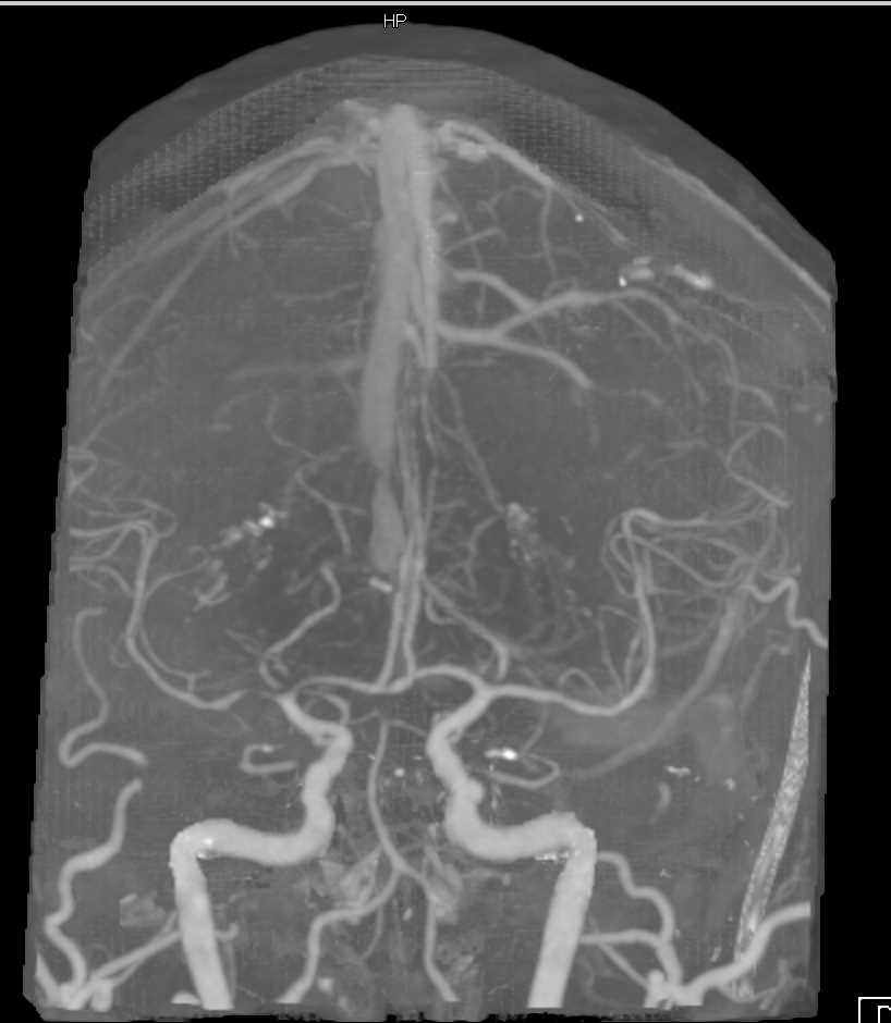 Mass Effect due to Tumor Edema - CTisus CT Scan