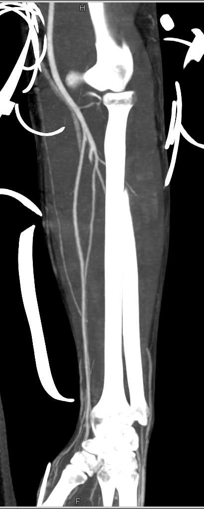 Normal CTA Forearm Post Trauma - CTisus CT Scan