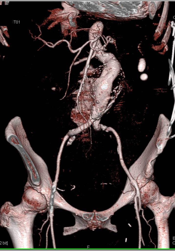 Aortic Aneurysm and Retroperitoneal Hemorrhage - CTisus CT Scanning