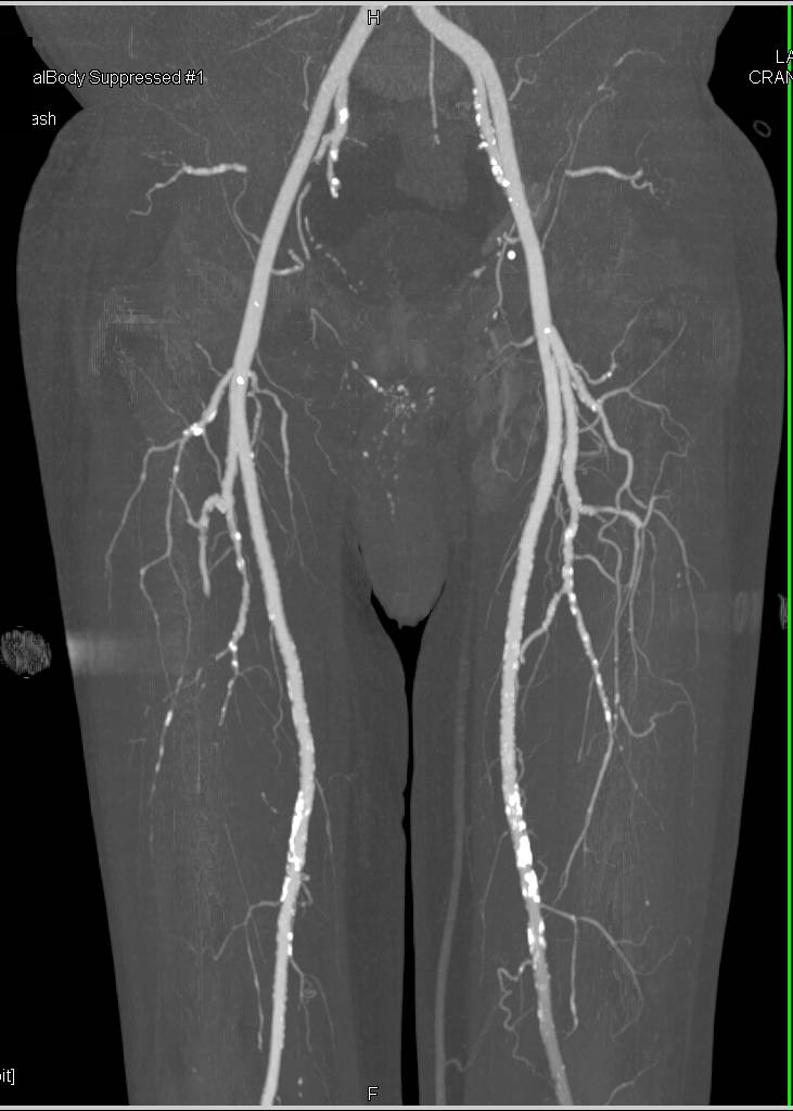 CTA Runoff with Peripheral Vascular Disease in Trifurcation Vessels
