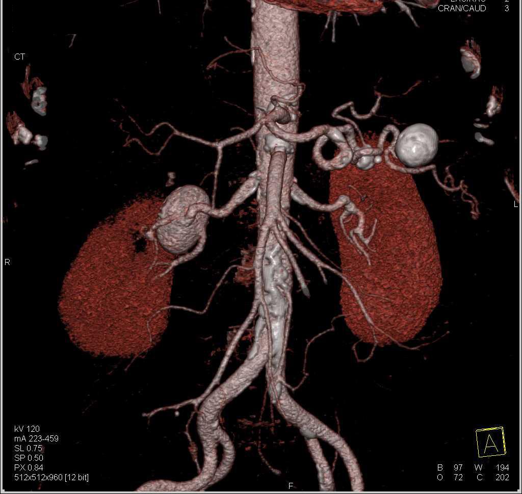 Right Renal Artery and Splenic Artery Aneurysms - Vascular Case ...