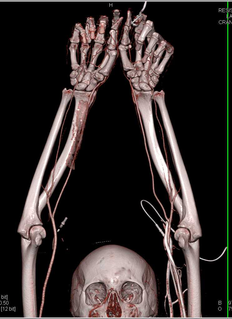 CTA of the Upper Extremities with Arm Extended Over the Head - CTisus CT Scanning