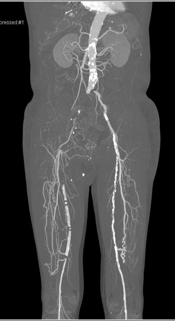 CTA Runoff with Multiple Lesions Including Right Superficial Femoral Artery (SFA) Occlusion - CTisus CT Scanning