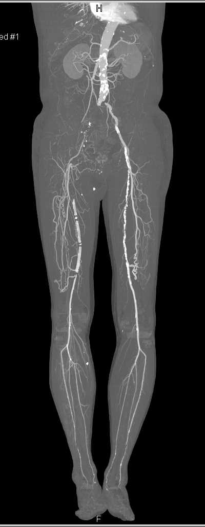 Peripheral Vascular Disease (PVD) with Vessel Segmentation - CTisus CT Scanning